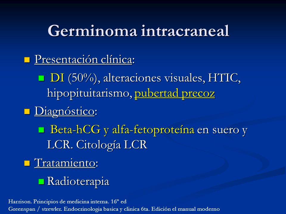 Germinoma intracraneal