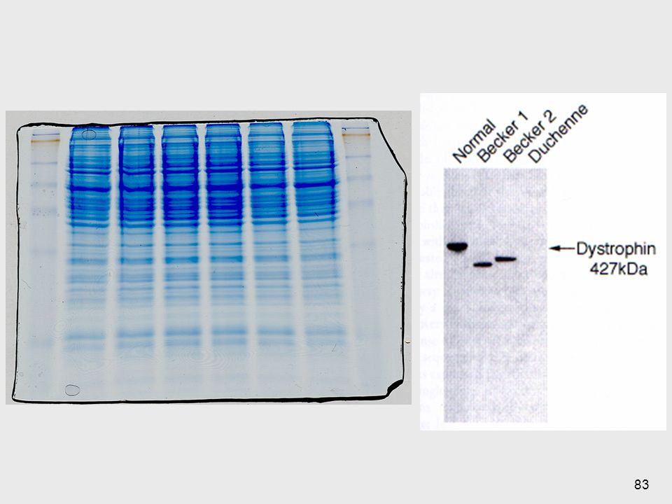 Se utiliza una sust que le de carga negativa a la proteína