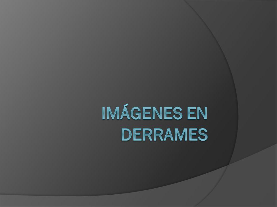 Imágenes en Derrames