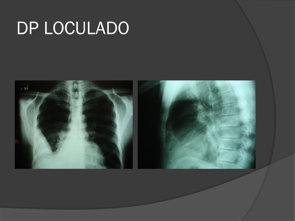 DP LOCULADO