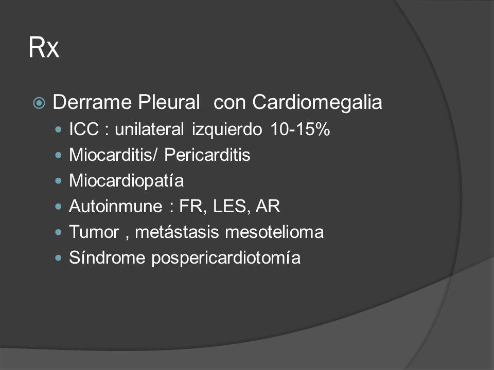 Rx Derrame Pleural con Cardiomegalia ICC : unilateral izquierdo 10-15%