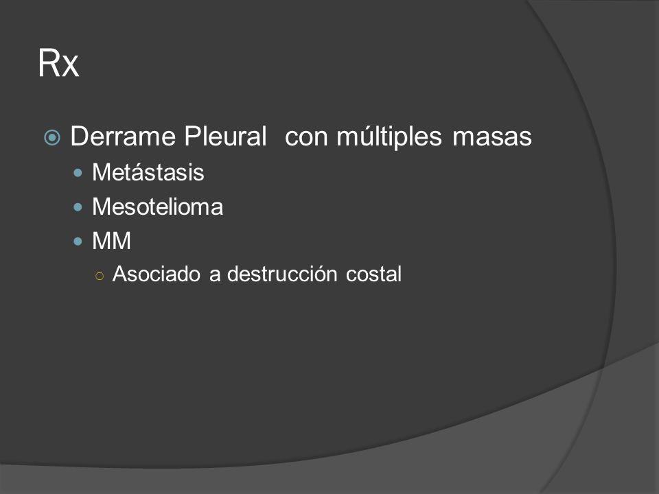 Rx Derrame Pleural con múltiples masas Metástasis Mesotelioma MM