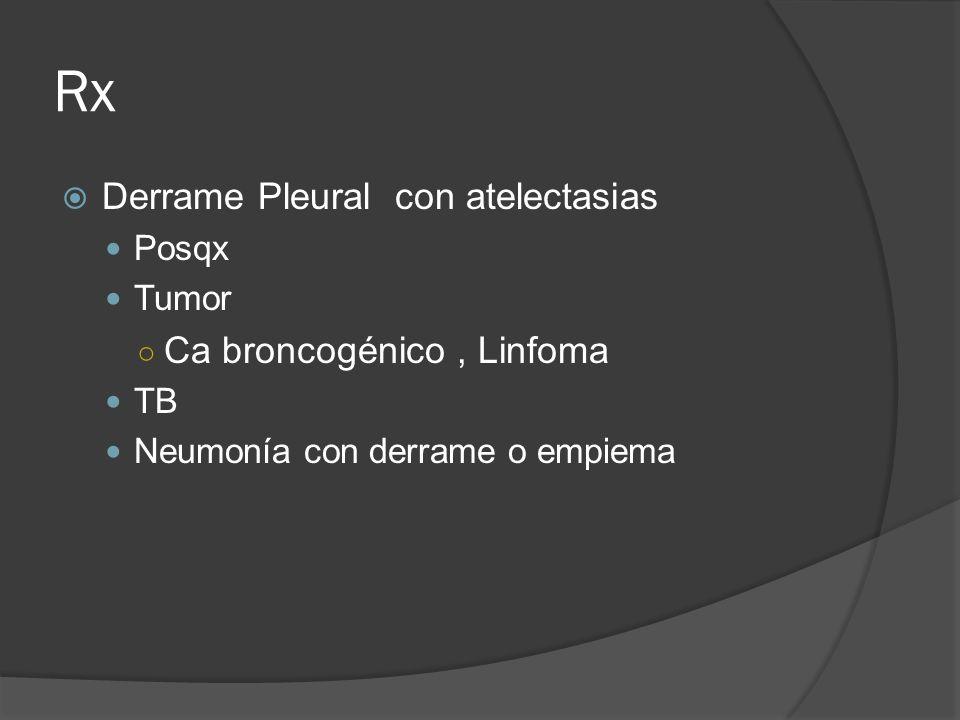 Rx Derrame Pleural con atelectasias Ca broncogénico , Linfoma Posqx