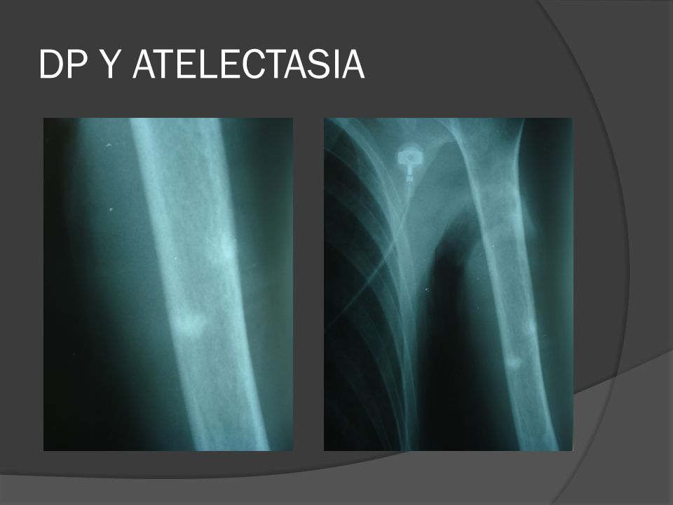 DP Y ATELECTASIA