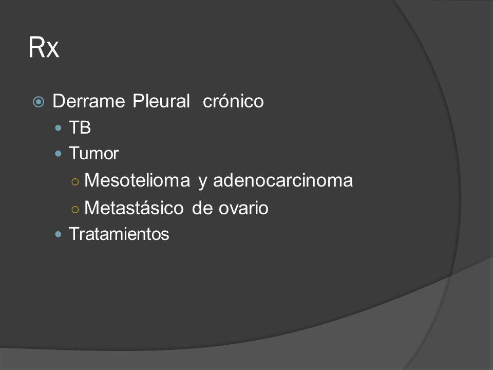 Rx Derrame Pleural crónico Mesotelioma y adenocarcinoma