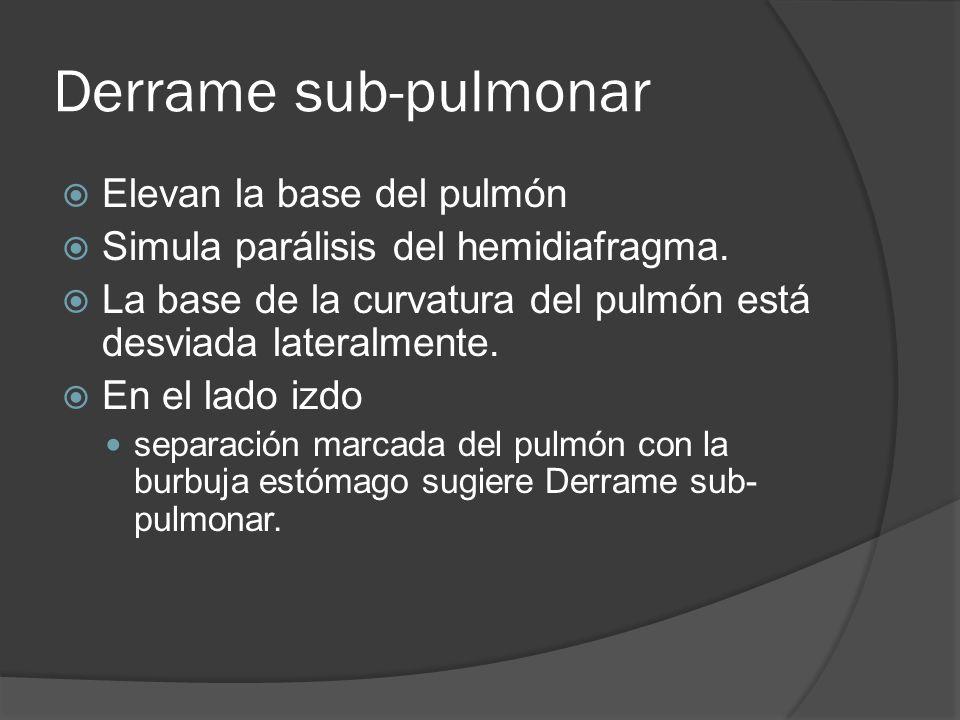 Derrame sub-pulmonar Elevan la base del pulmón