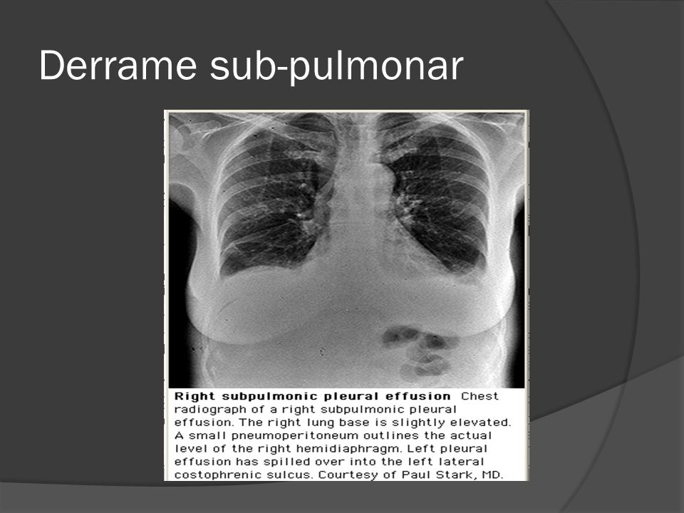 Derrame sub-pulmonar
