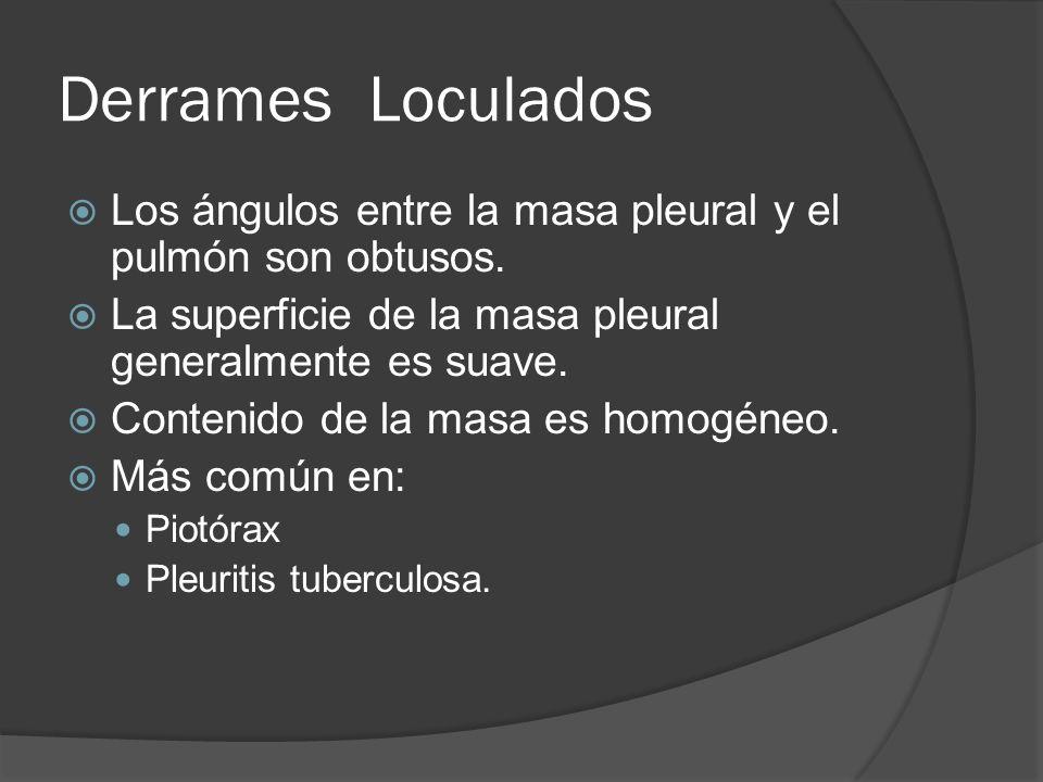 Derrames Loculados Los ángulos entre la masa pleural y el pulmón son obtusos. La superficie de la masa pleural generalmente es suave.