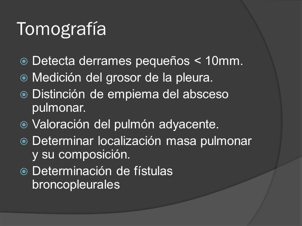 Tomografía Detecta derrames pequeños < 10mm.