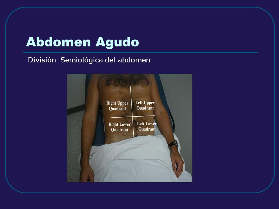 Abdomen Agudo División Semiológica del abdomen