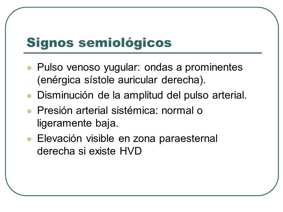 Signos semiológicosPulso venoso yugular: ondas a prominentes (enérgica sístole auricular derecha). Disminución de la amplitud del pulso arterial.