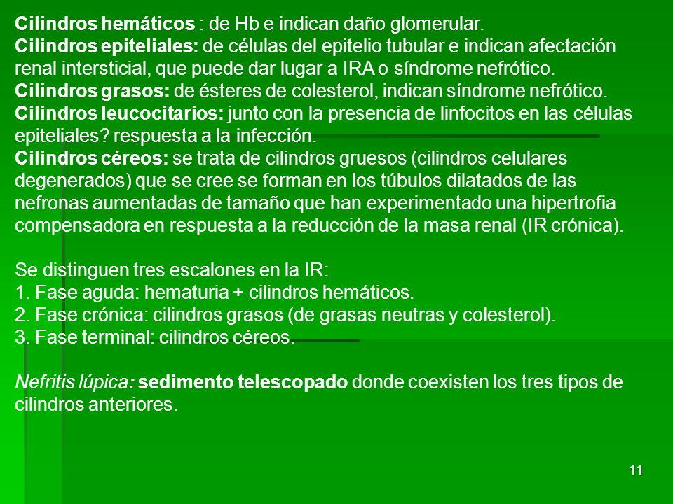 Cilindros hemáticos : de Hb e indican daño glomerular.