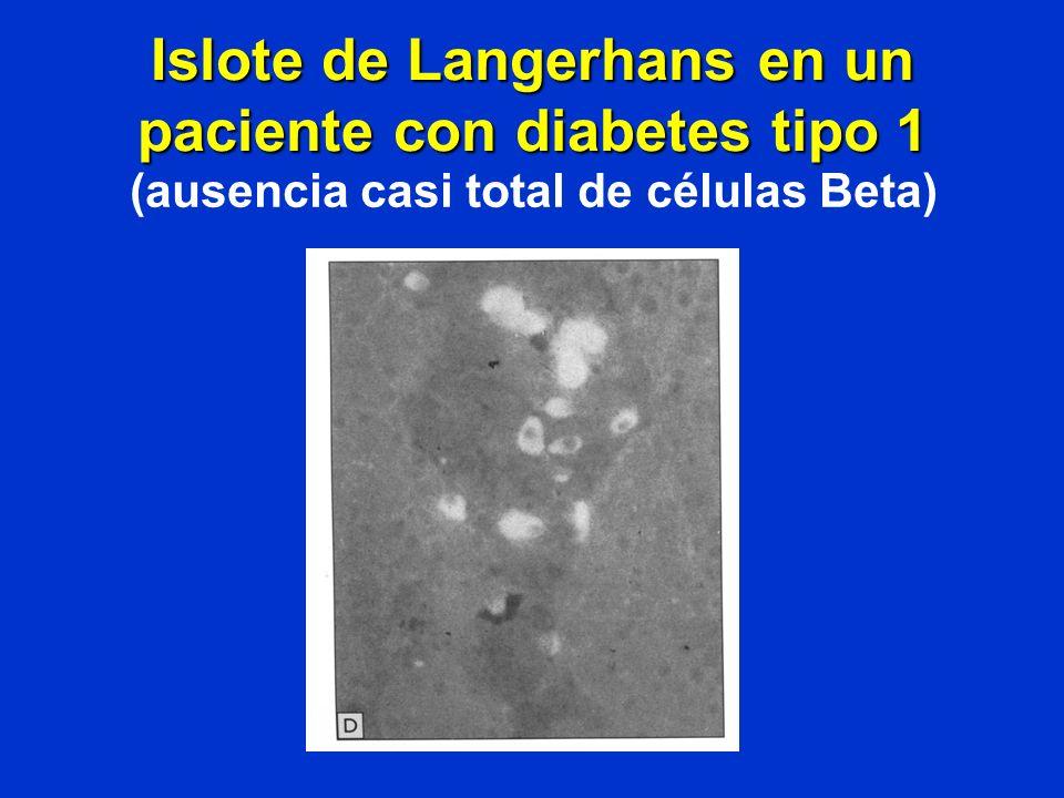 Islote de Langerhans en un paciente con diabetes tipo 1