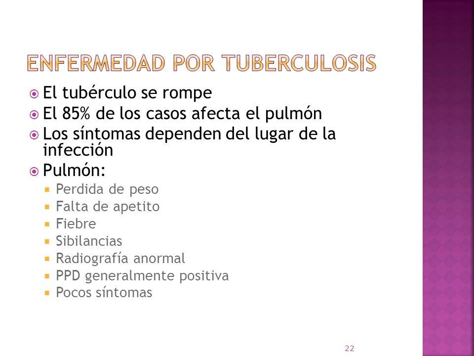 Enfermedad por Tuberculosis