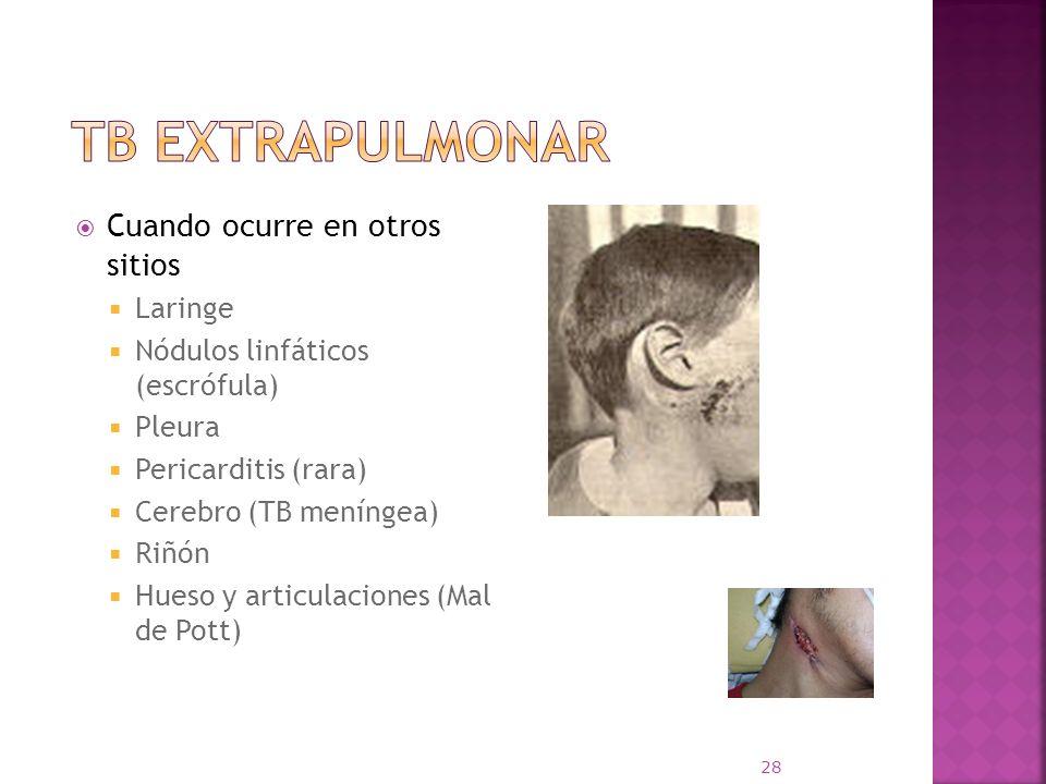 TB extrapulmonar Cuando ocurre en otros sitios Laringe