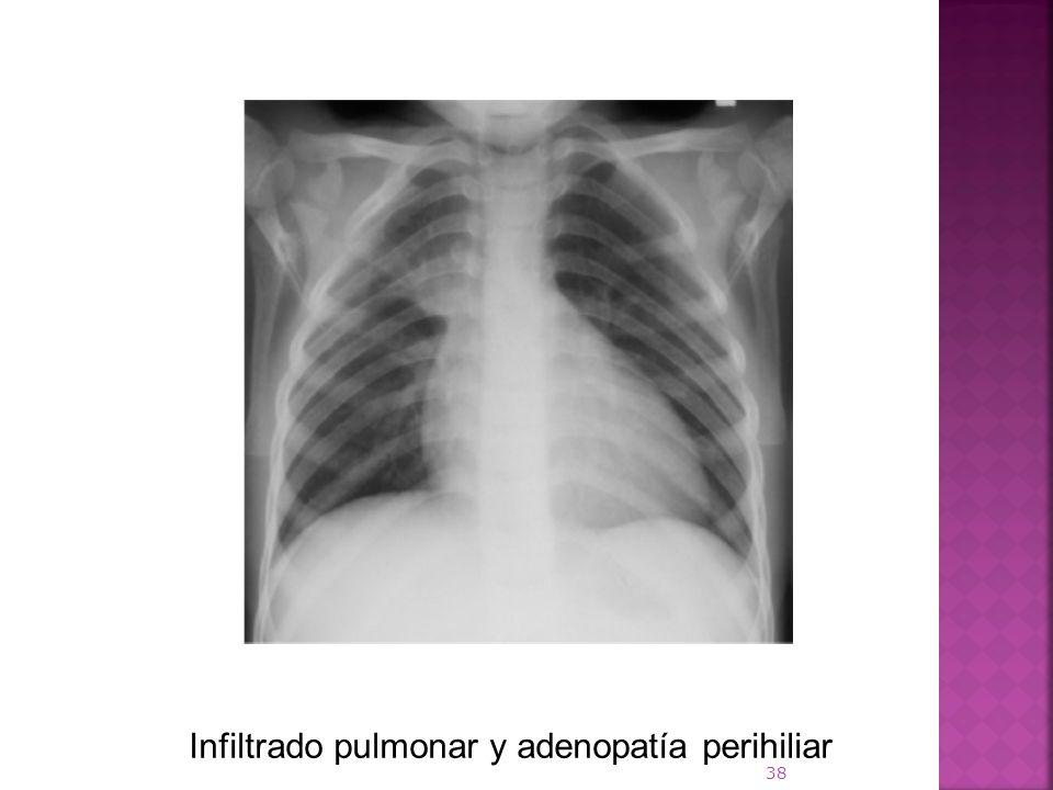 Infiltrado pulmonar y adenopatía perihiliar