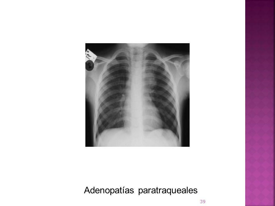 Adenopatías paratraqueales
