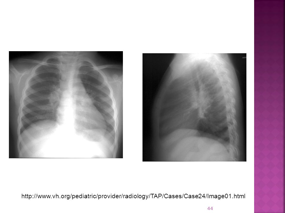 http://www.vh.org/pediatric/provider/radiology/TAP/Cases/Case24/Image01.html