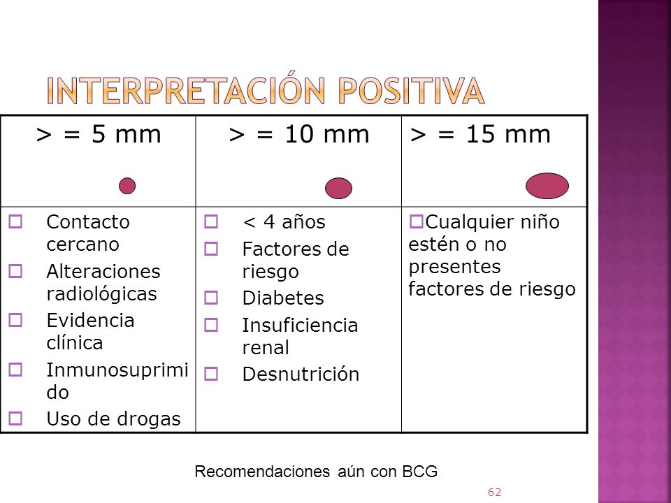 Interpretación positiva