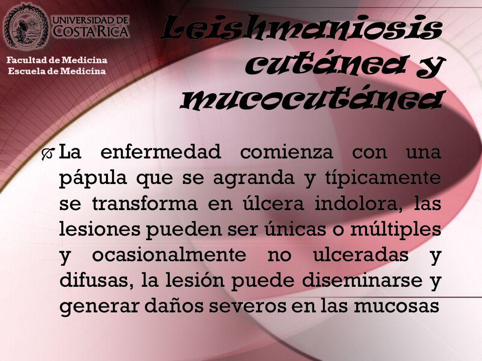 Leishmaniosis cutánea y mucocutánea