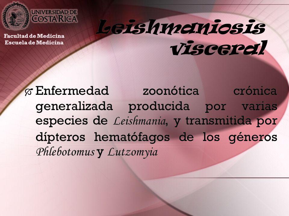 Leishmaniosis visceral