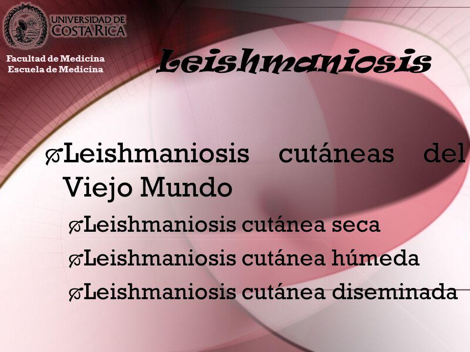 Leishmaniosis cutáneas del Viejo Mundo