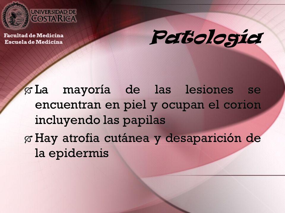 PatologíaFacultad de Medicina. Escuela de Medicina. La mayoría de las lesiones se encuentran en piel y ocupan el corion incluyendo las papilas.