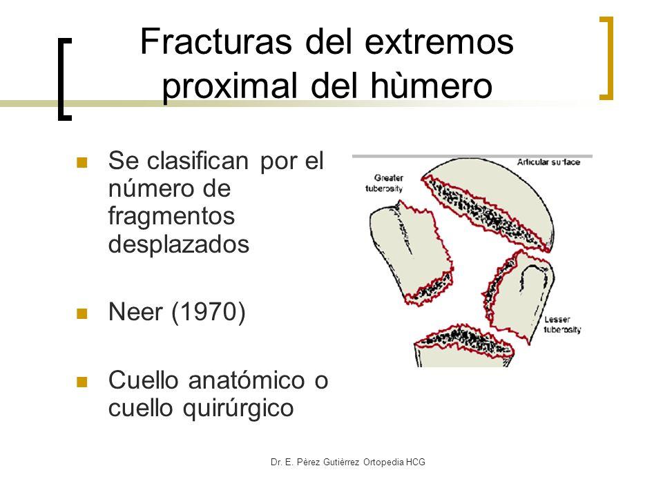 Fracturas del extremos proximal del hùmero