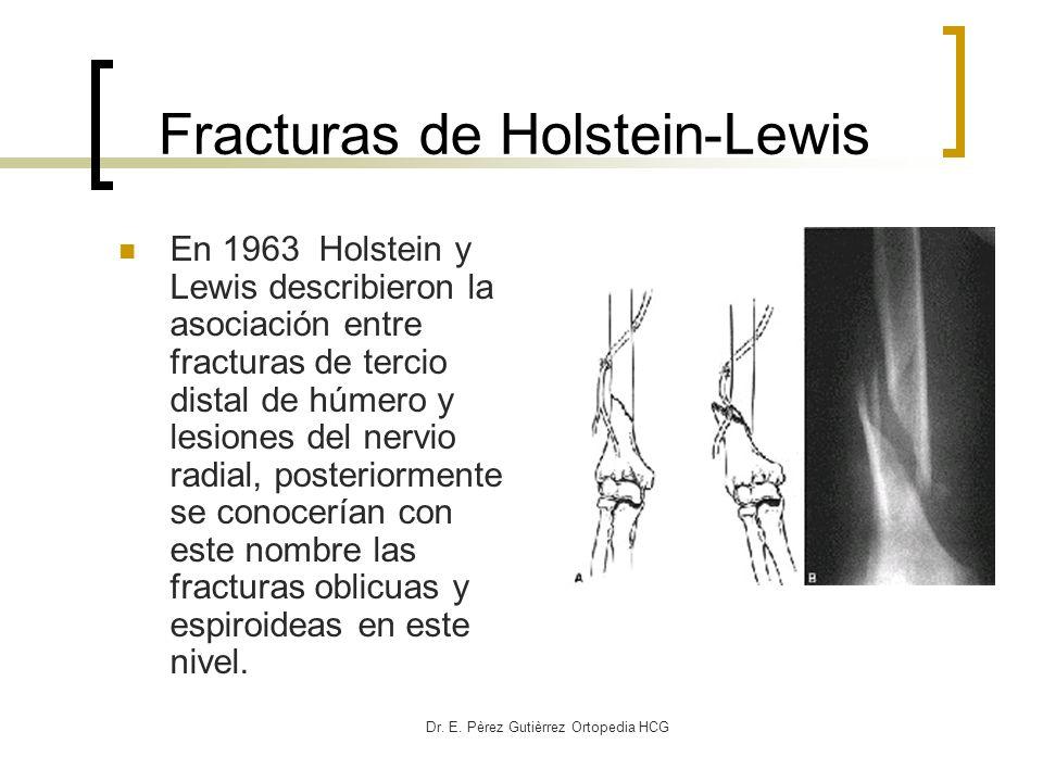 Fracturas de Holstein-Lewis