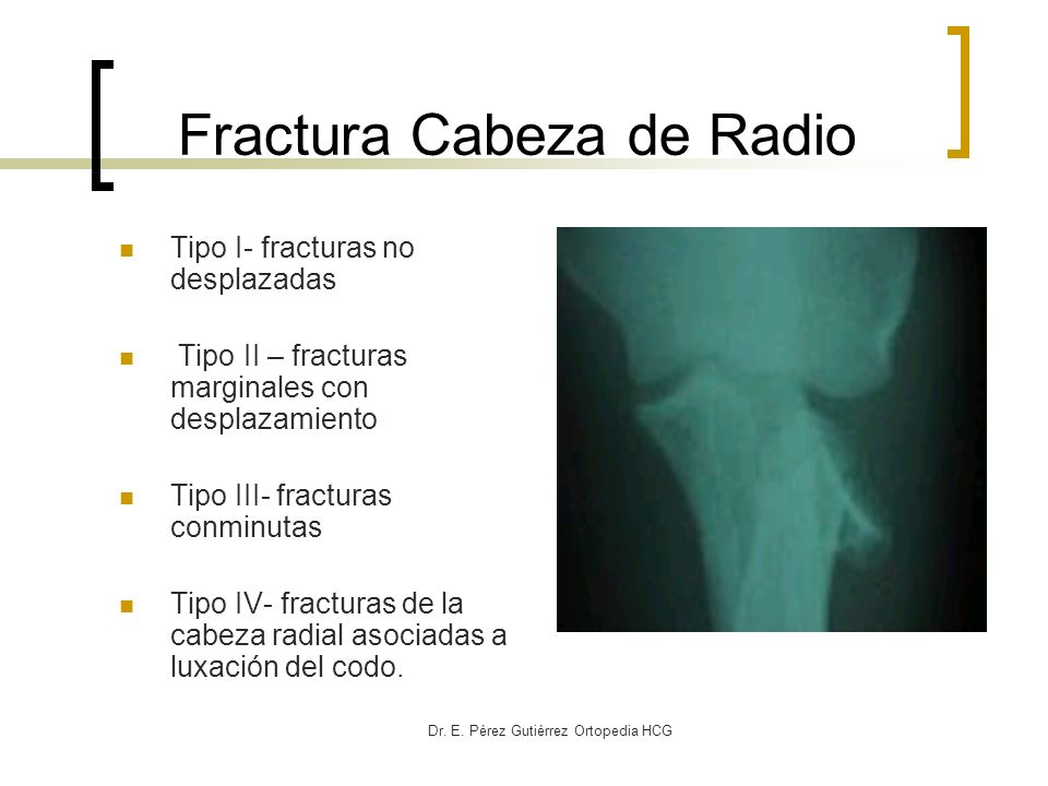 Fractura Cabeza de Radio