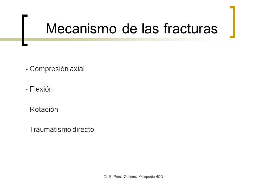 Mecanismo de las fracturas