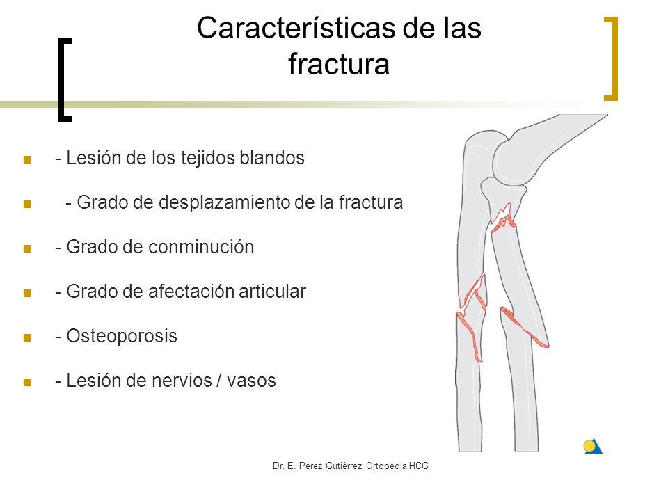 Características de las fractura