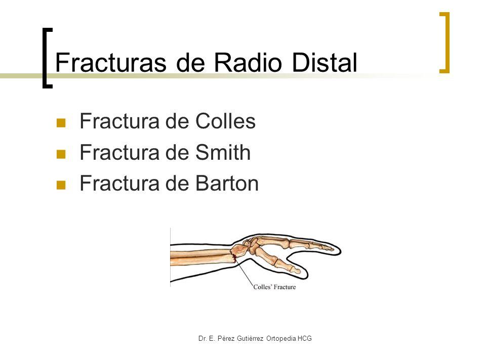 Fracturas de Radio Distal