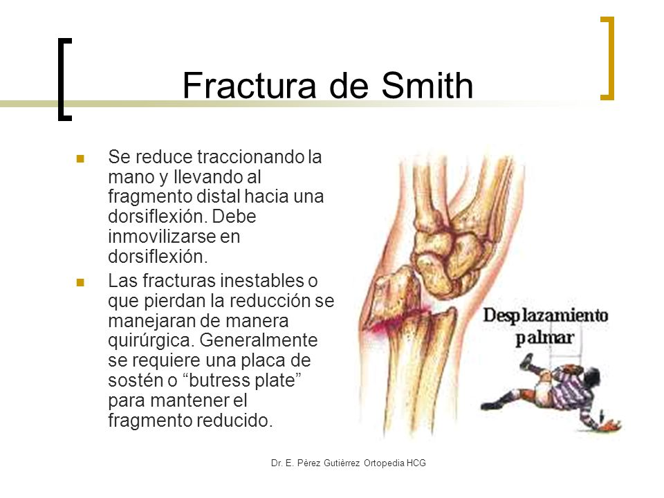Dr. E. Pèrez Gutièrrez Ortopedia HCG