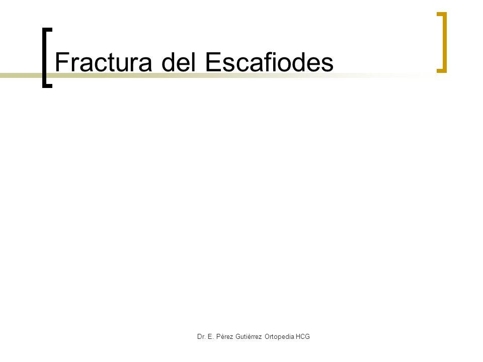 Fractura del Escafiodes