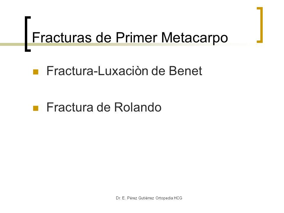 Fracturas de Primer Metacarpo