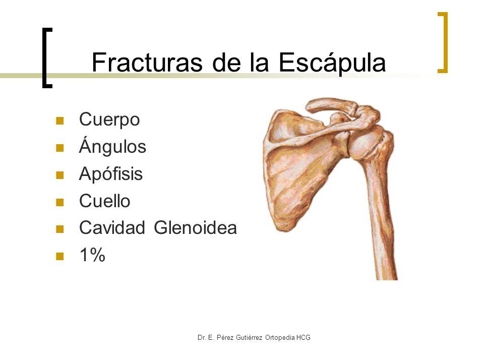 Fracturas de la Escápula