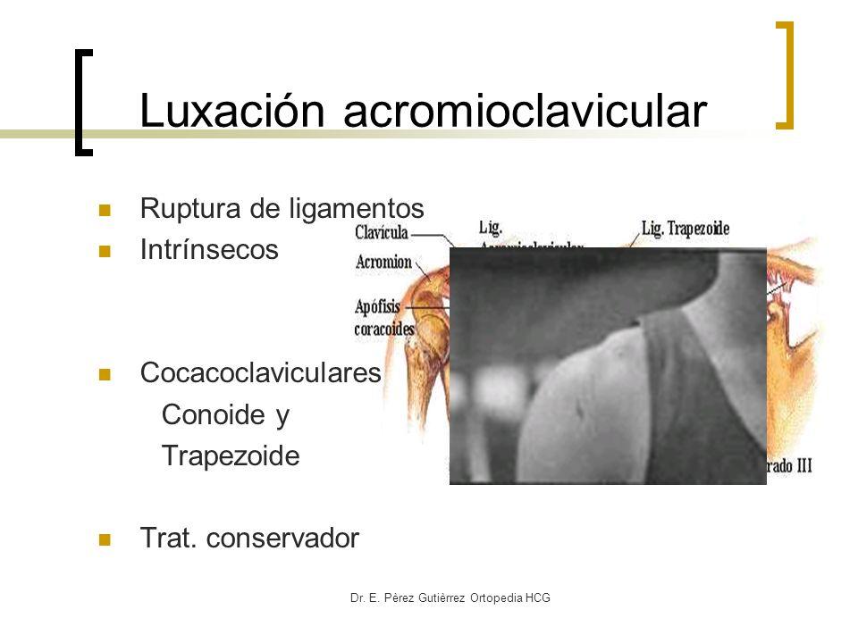 Luxación acromioclavicular