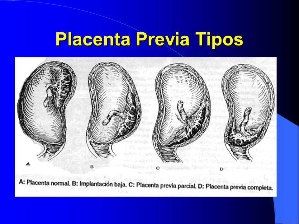 Placenta Previa Tipos