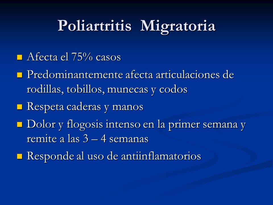 Poliartritis Migratoria