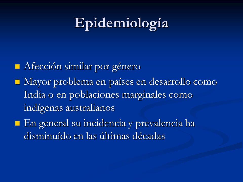 Epidemiología Afección similar por género