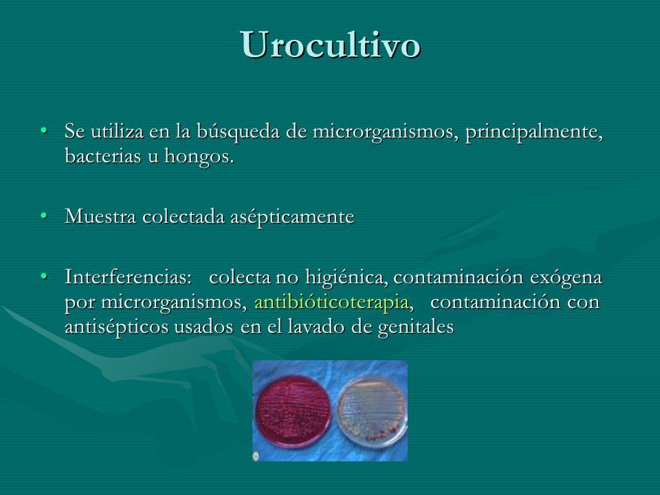 Urocultivo Se utiliza en la búsqueda de microrganismos, principalmente, bacterias u hongos. Muestra colectada asépticamente.