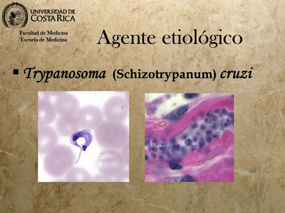 Agente etiológico Trypanosoma (Schizotrypanum) cruzi