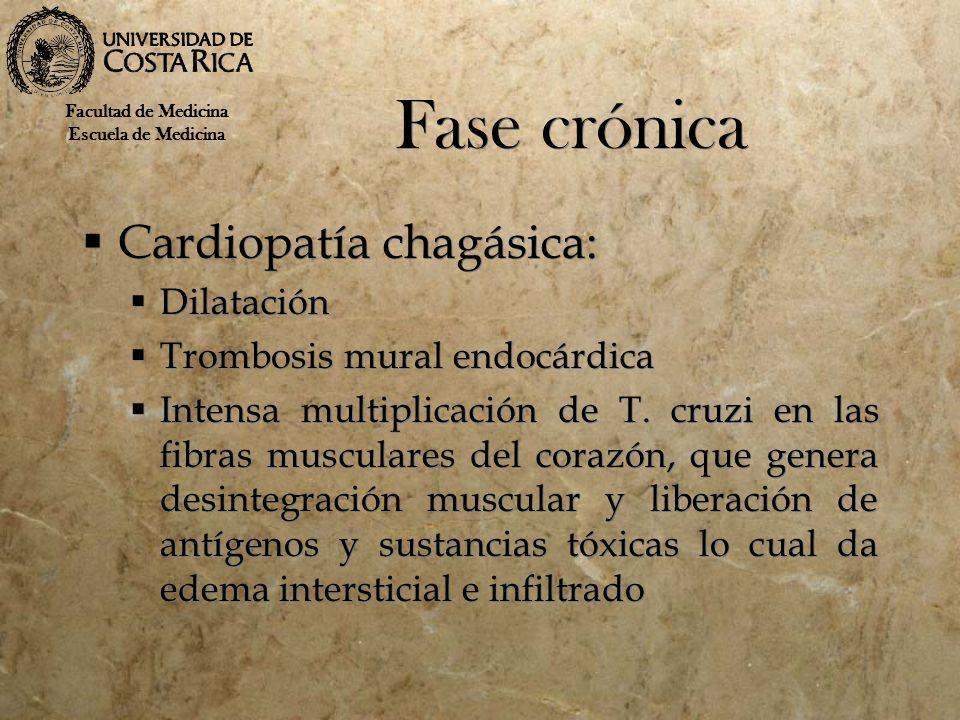 Fase crónica Cardiopatía chagásica: Dilatación