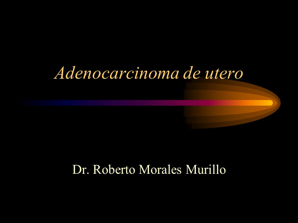 Adenocarcinoma de utero