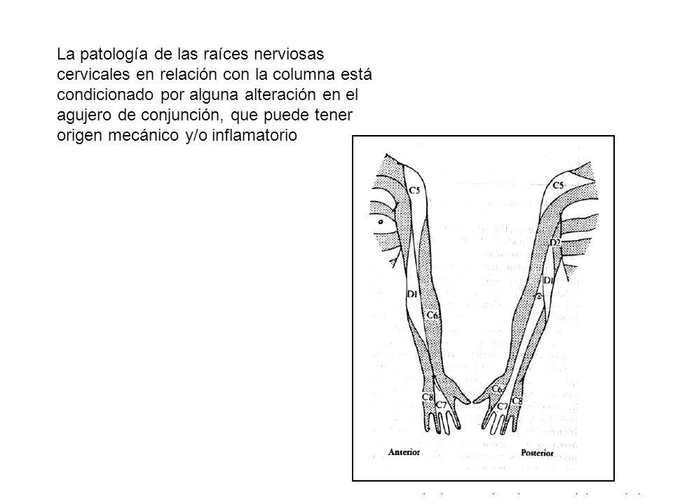La patología de las raíces nerviosas cervicales en relación con la columna está