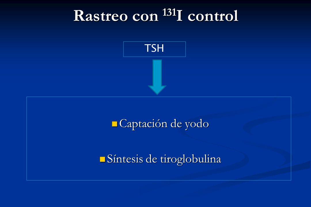 Síntesis de tiroglobulina
