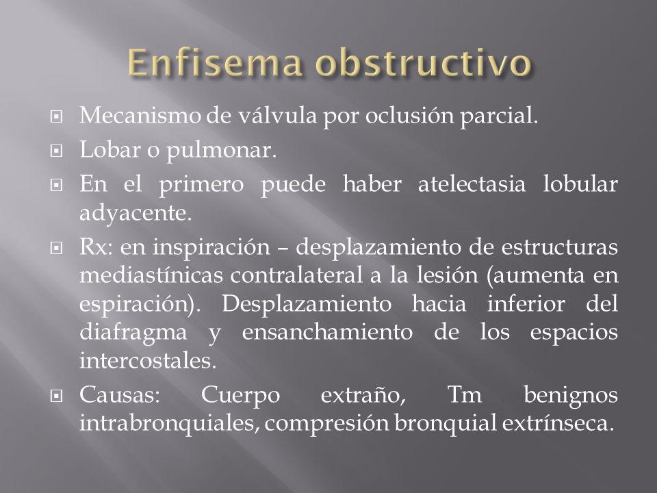 Enfisema obstructivo Mecanismo de válvula por oclusión parcial.