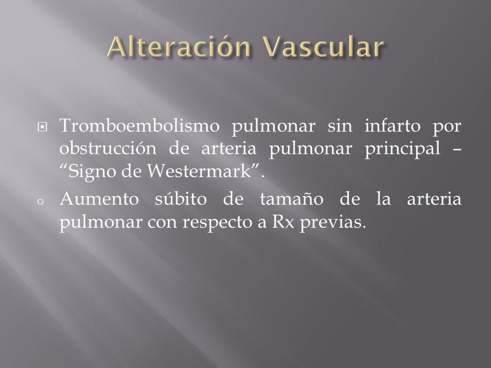 Alteración Vascular Tromboembolismo pulmonar sin infarto por obstrucción de arteria pulmonar principal – Signo de Westermark .
