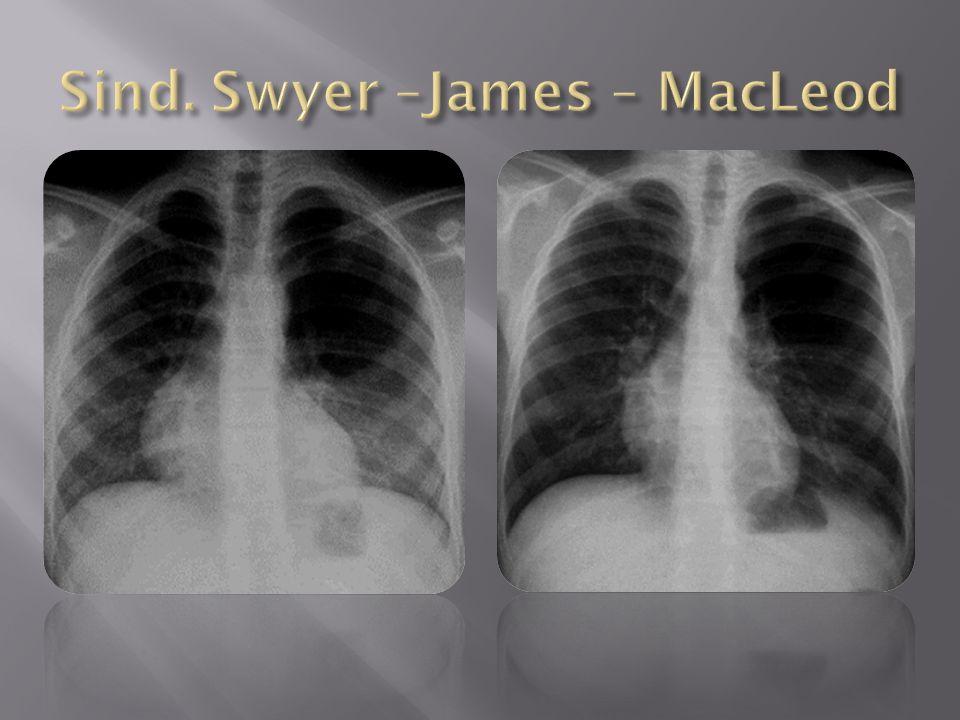 Sind. Swyer –James – MacLeod